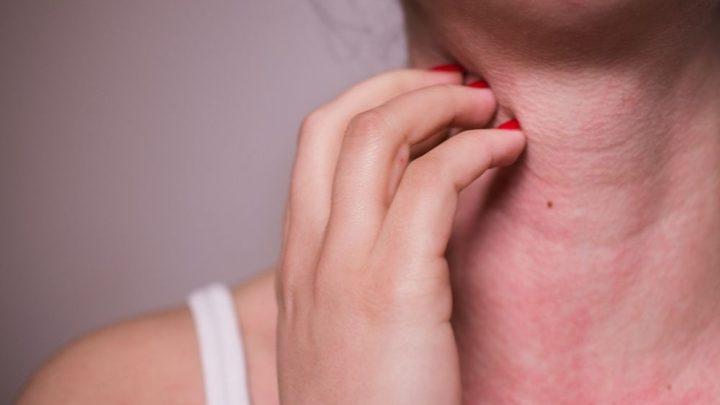 Jakie kosmetyki do skóry atopowej warto stosować?